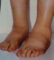 Symetrické otoky dolních končetin jsou typickým projevem nefrotického syndromu, jehož dominantním příznakem je výrazná proteinurie, hypoproteinemie, hypalbuminemie a symetrické otoky DK. Tato porucha vzniká porušením glomerulární membrány (viz obr. 1–4). Nefrotický syndrom může mít velmi mnoho příčin, které však nelze bez biopsie ledviny diagnostikovat a tedy ani cíleně léčit. Nefrotický syndrom nejasného původu je tedy jasnou indikací k biopsii ledviny.