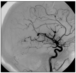 V boční projekci jsou patrny ojedinělé uzávěry větví v úrovni M4, většina povodí cerebri media je průchodná. Nemocná s odstupem tří měsíců mRS 1.