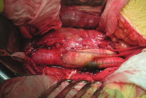 Infikovaná bifurkační cévní protéza (peroperační foto).