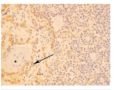 Primárny pleomorfný adenóm – ložisko dlaždicovobunkovej metaplázie. bcl-2 negatívna imunoreakcia štruktúr napodobňujúcich interkalárne dukty na pravej strane obrázku. Oblasti skvamocelulárnej metaplázie (hviezdička) obklopené bcl-2 pozitívnymi intermediárnymi bunkami (šípka) (x 200).