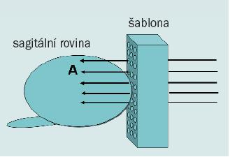 Diagram zobrazující transperineální biopsii s použitím template (šablony). Tkáň z anteriorní distální části prostaty (A) lze snadno získat pomocí perineálního přístupu.