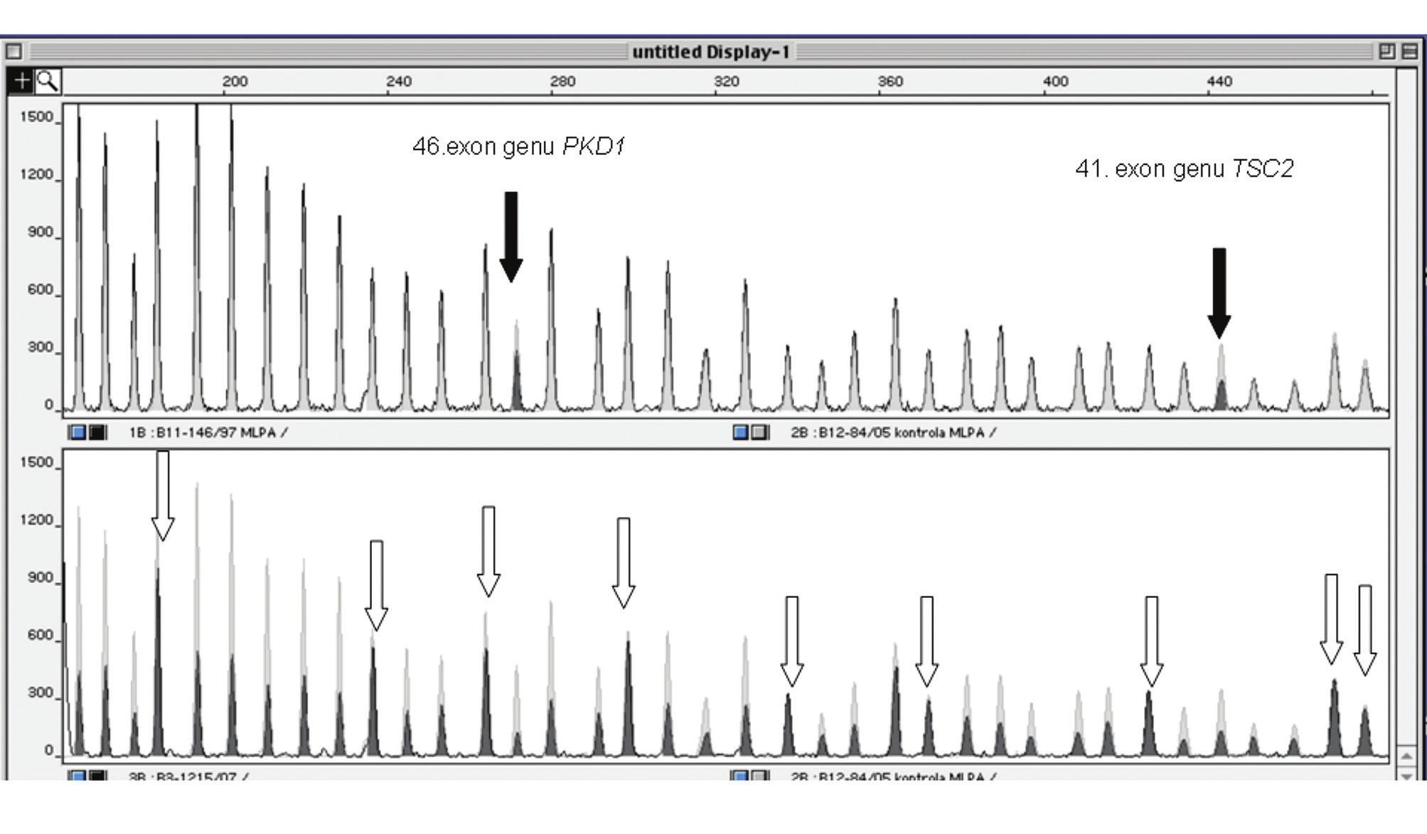 Detekce rozsáhlých delecí TSC2 genu metodou MLPA. Obrázek představuje výřez elektroforetogramu z kapilární elektroforézy. Černé peaky jsou PCR produkty DNA pacienta, šedé označují fyziologickou kontrolní DNA. V horní části: redukce signálu PCR produktu 46. exonu PKD1 a 41. exonu TSC2 (šipky) ve srovnání s fyziologickou kontrolou prokazuje distální deleci TSC2 genu. V dolní části: redukce signálu všech sledovaných exonů TSC2 a 46. exonu v genu PKD1 ve srovnání s fyziologickou kontrolou prokazuje kompletní deleci testovaného lokusu. Šipky označují vnitřní kontrolní produkty.