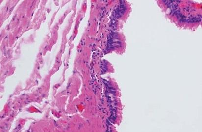 Histologický nález, uvnitř cysty cylindrický řasinkový epitel respiračního typu. Fig. 4. Histology findings, inside the cyst there is columnar ciliated epithelium of the respiratory type.