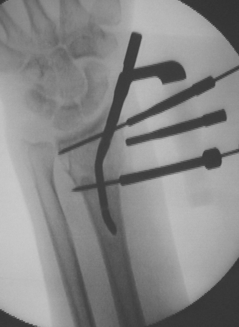 Peroperační RTG ve fázi před zavedením jistících šroubů. Po zavedení hřebu již není možná korekce postavení ve zlomenině Fig. 3. Intraoperative X-ray prior to introduction of stabilization screws. Once the nail is introduced, no correction of its positioning in the fractured bone is possible