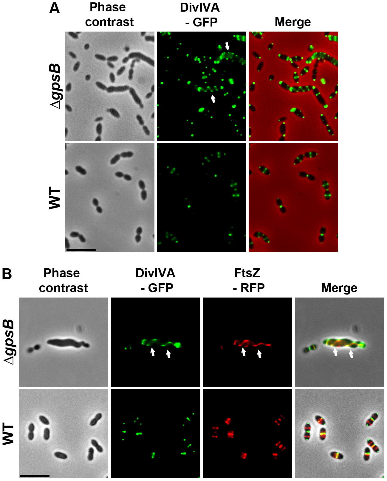 Localization of DivIVA in WT and Δ<i>gpsB</i> cells.