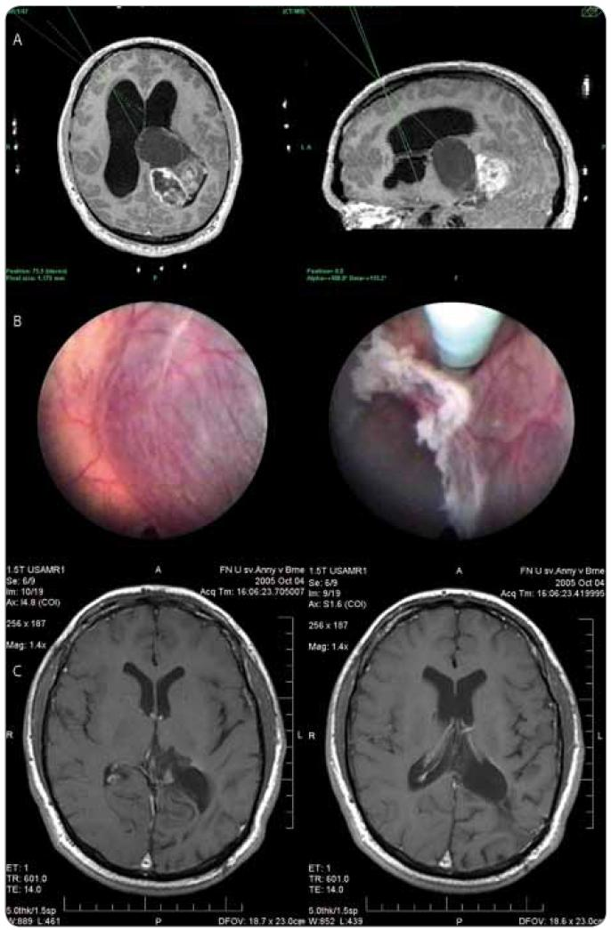 Muž, 20 let, klinicky nitrolební hypertenze, v prvním stadiu endoskopická septostomie, fenestrace cysty, histologická verifikace (pleomorfní xanthoastrocytom II ). a) plánování trajektorií pro neuroendoskopické operace, b) endoskopický obraz před fenestrací pseudocysty a po její fenestraci, c) MRI obraz po provedené resekci.