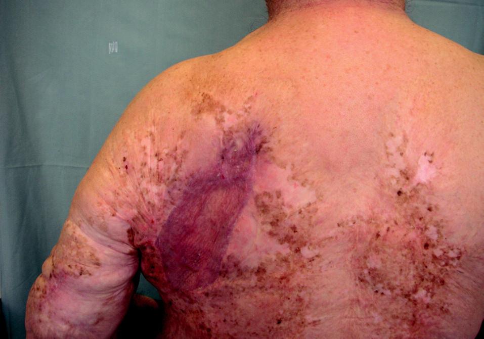 Stav po excizi a autotransplantaci kůže. Zhojeno primárně. 3/2005.