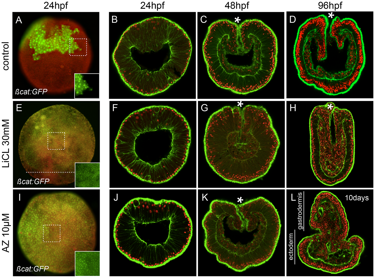 Ectopic activation of canonical Wnt signaling.