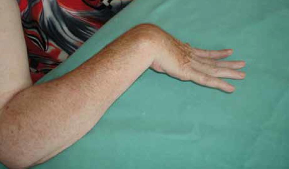 Obr. 9. Osmapadesátiletá žena šest měsíců po CMP s pravostrannou hemiparézou – spasticita ruky s flexí v zápěstí, extenzí prstů a ulnární dukcí ruky.
