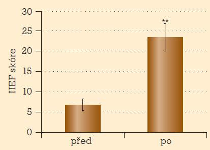 Erektilní dysfunkce před léčbou a po tříměsíční léčbě tadalafilem (IIEF skóre).