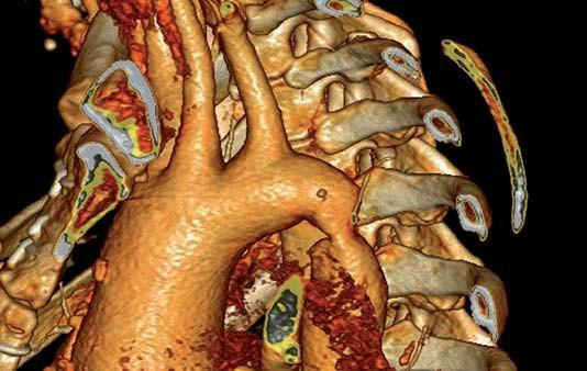 Obr. 3a. CT angiografie s 3D rekonstrukcí ukazuje těžkou neléčenou koarktaci aorty u 50leté ženy  s dilatací ascendentní aorty.