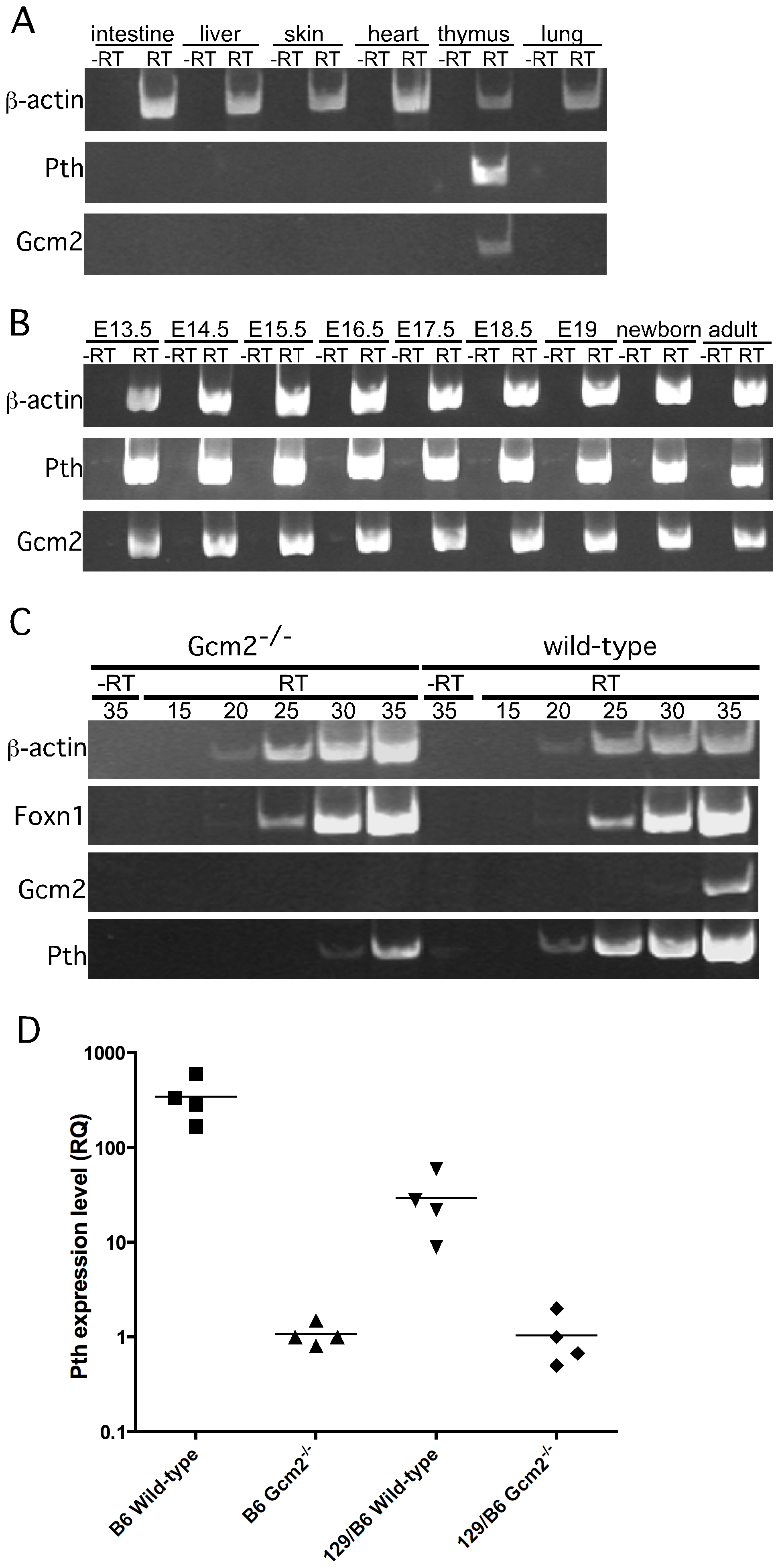 <i>Pth</i> expression in misplaced parathyroid cells was co-expressed with <i>Gcm2</i> and down-regulated in <i>Gcm2</i>-null mutant mice.