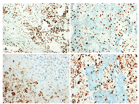 Imunohistochemický průkaz antigenů SATB2 a D-2-40 dovolil spolehlivě odlišit nejen histogenetickou orientaci původního mezenchymu, ale i pravou podstatu výrazně kalcifikované rozdílné extracelulární matrix. A, B: Exprese SATB2 v nádorovém stromatu resp. mineralizovaném osteoidu. C, D: Exprese D2-40 v konvenční resp. mineralizované chondroidní matrix; stroma je negativní (200x).
