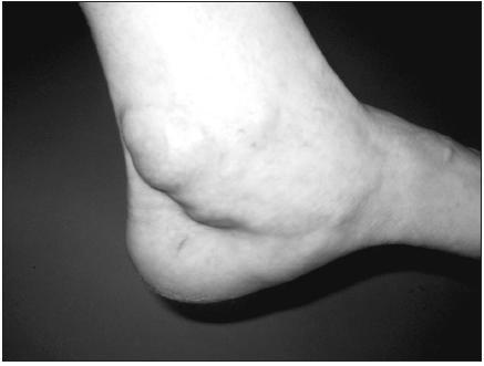 Synovialitida šlachy m. tibialis posterior.