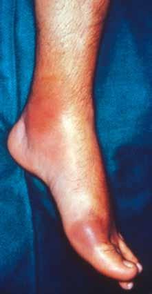 Akutní dnavá artritida prvního metatarzofalangeálního kloubu nohy (podagra).