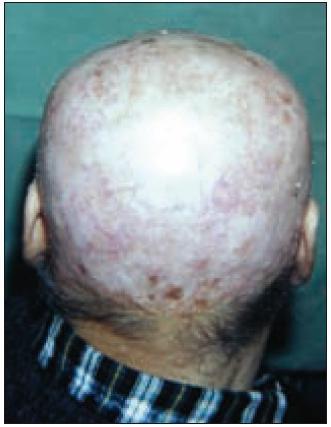 Kůže hlavy pacienta po excizi Ca a po transplantaci kožního laloku.
