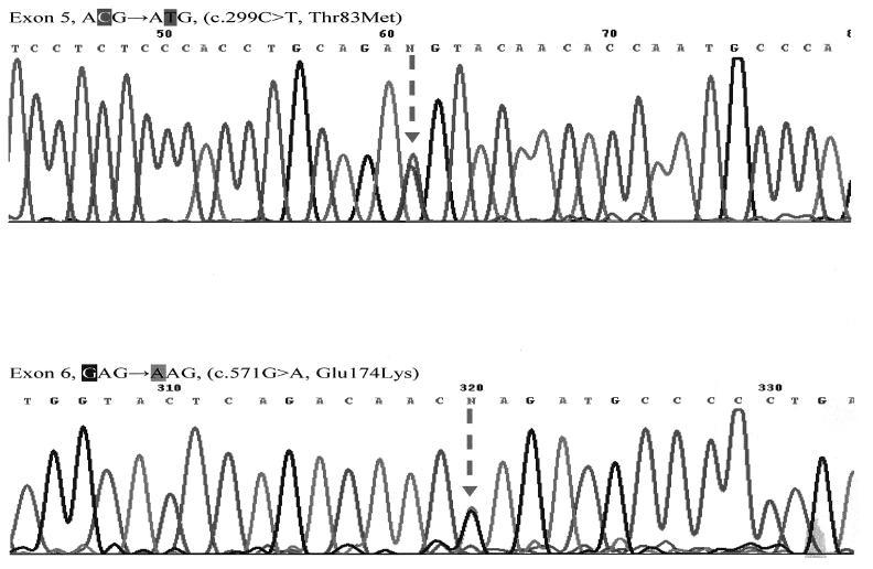 Sekvenčná analýza 5. a 6. exónu génu ALPL Mutácie v heterozygotnom stave c.299C>T(T83M) a c.571G>A(E174K) sú označené na obrázku šípkou (u oboch sestier zistené rovnaké mutácie).