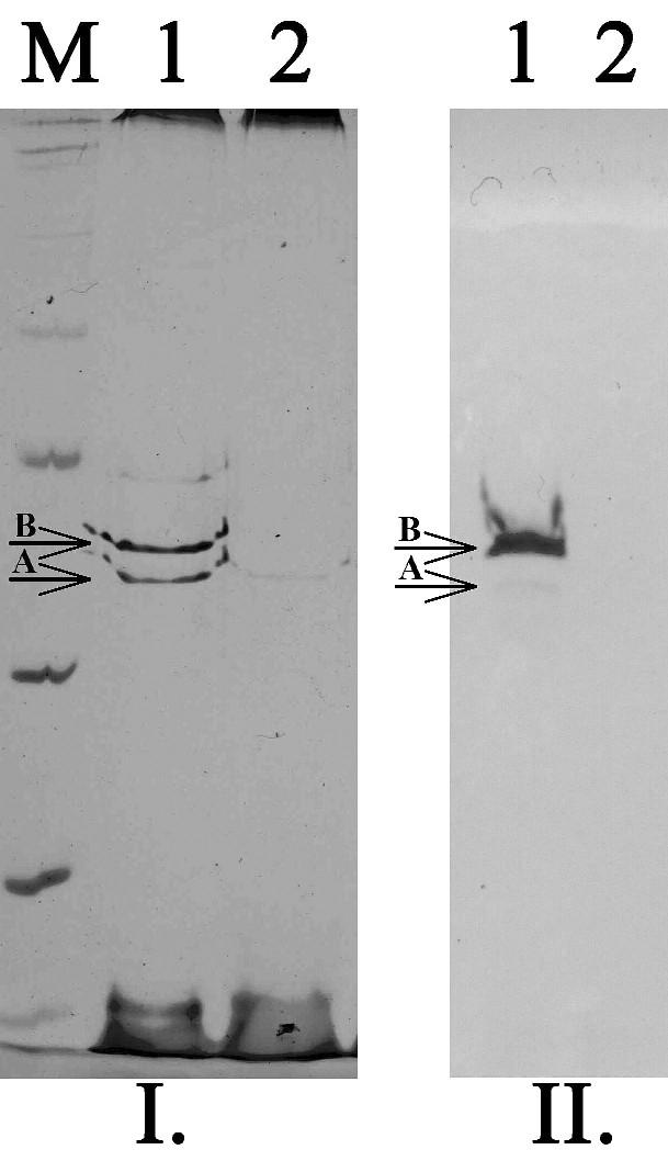 SDS-PAGE (I.) a detekce porinů pomocí specifických protilátek (II.) u kmenů K. pneumoniae. M – standard molekulových hmotností, 1 – kmen citlivý ke karbapenemům exprimující oba hlavní poriny (OmpK35 – A, OmpK36 – B), 2 – kmen rezistentní ke karbapenemům velmi slabě exprimující pouze OmpK35 Fig. 3. SDS-PAGE and Western-blott detection of porins in K. pneumoniae strains. M – marker of molecular weight, 2 – strain susceptible to carbapenems expressed both main porins (OmpK35 – A, OmpK36 – B), 2 – strain resistant to carbapenems expressed only OmpK35 in very low level