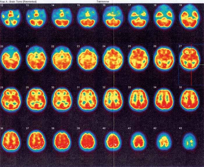 Obr. 6b. Kontrolní SPECT vyšetření mozku rovněž neprokazuje ložiskovou poruchu relativní mozkové perfuze.