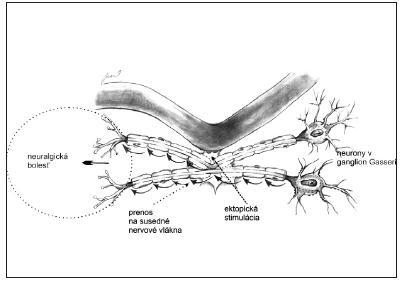 Schéma teórie patogenézy neuralgie n. V.