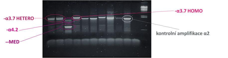 Obr. 4C. Diagnostika α-talasemických delecí  Výsledek multiplexního PCR v agarózovém gelu prokazující dvě nejčastější α<sup>+</sup>-talasemické delece (–α<sup>3.7</sup>; –α<sup>4.2</sup>) a α<sup>0</sup>-talasemickou deleci – –<sup>MED</sup>.
