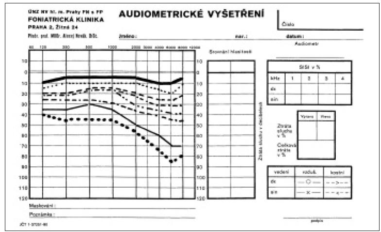 Ztráty sluchu v závislosti na věku: jednotlivé křivky (prahy sluchu) jsou průměrné ztráty sluchu v dB po 10 letech