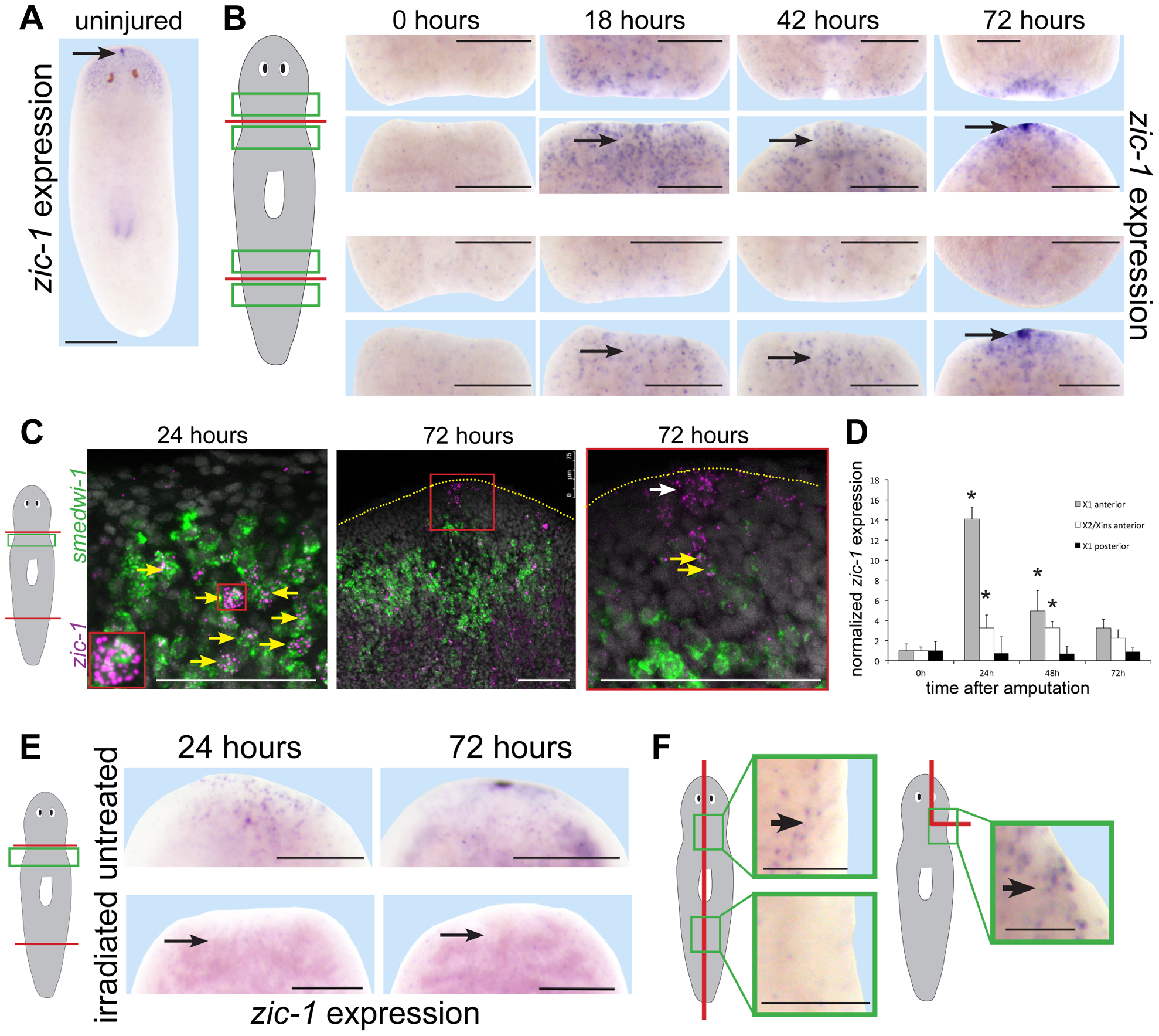 Injury induces expression of <i>zic-1</i> in neoblasts and in the regenerating anterior pole.