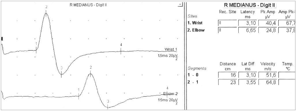 Obr. 5b. U 44letého muže se rozvinulo asymetrické oslabení všech čtyř končetin. Bez poruch čití – senzitivní neurogram n. medianus v mezích širší normy.