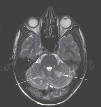 Mnohočetná ischemická ložiska v mozečkových hemisférách na MR v T2 vážených obrazech (šipky).