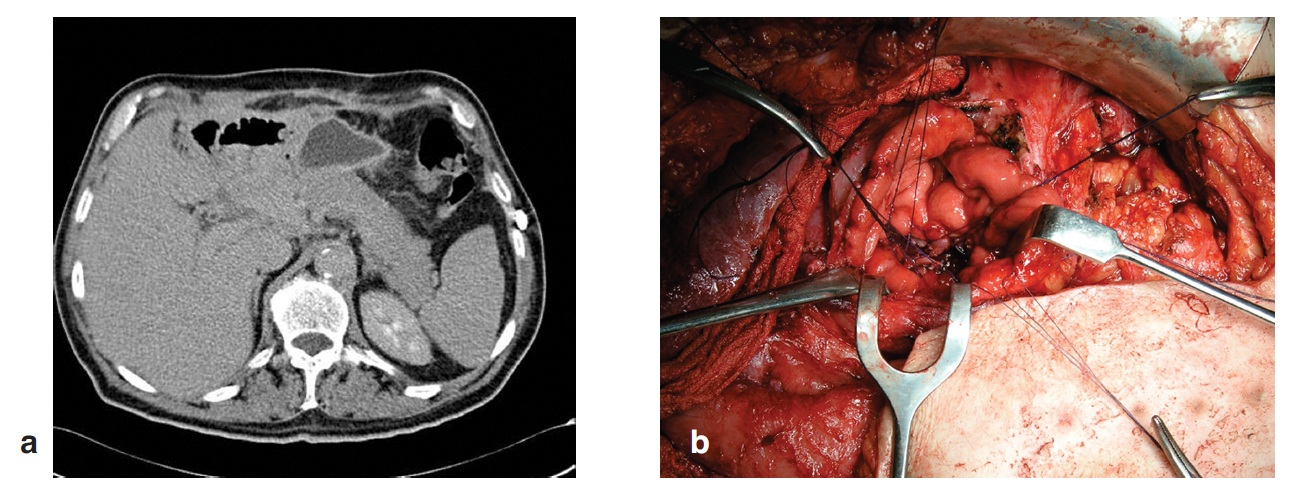 Kazuistika 3 – a) pooperační CT s retrogastrickou kolekcí tekutiny, b) vytvoření GFA Fig. 6: Case 3 – a) postoperative CT with retrogastric collection of fluid, b) GFA construction
