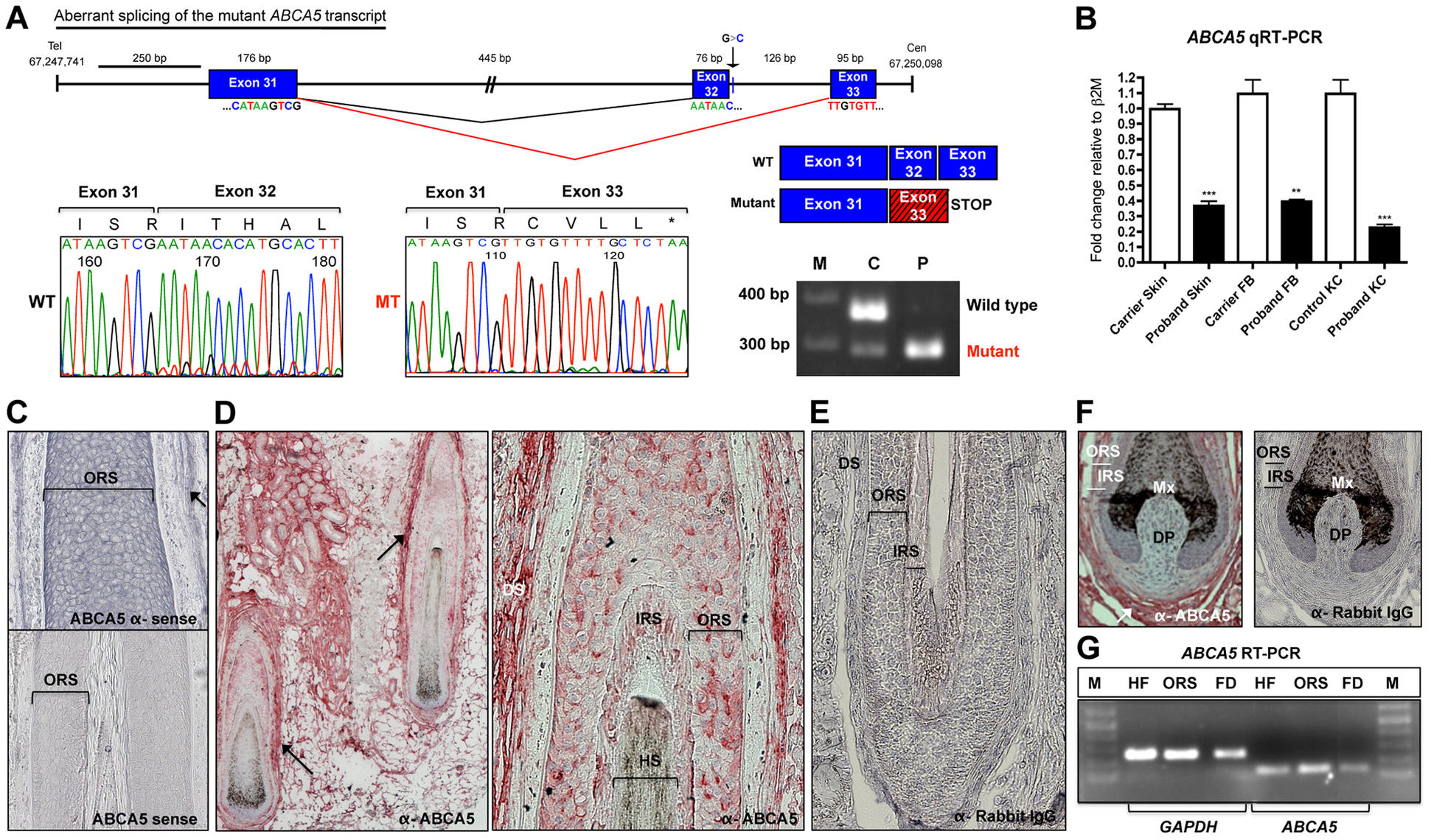The <i>ABCA5</i> c.4320+1G&gt;C mutation leads to aberrant splicing and nonsense mediated decay, and <i>ABCA5</i> is abundantly expressed in the skin and hair follicle.
