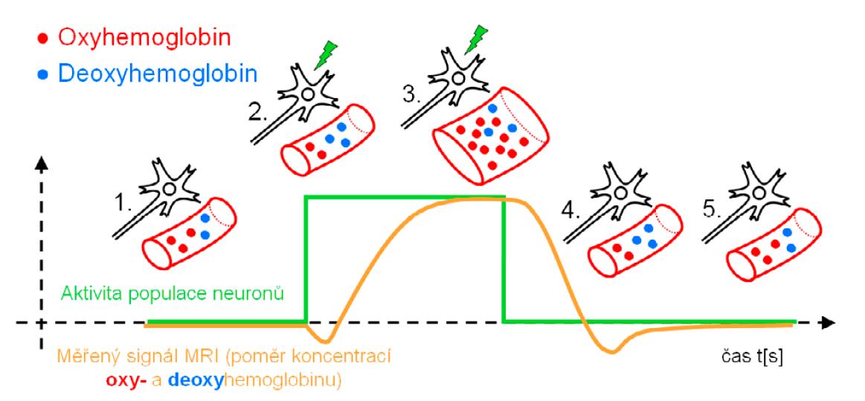 Schéma časového záznamu aktivace neuronu, změn prokrvení (perfuze) v jeho blízkosti, změn poměrů koncentrací oxy- a deoxyhemoglobinu a odpovídajících změn měřeného signálu pomocí MR