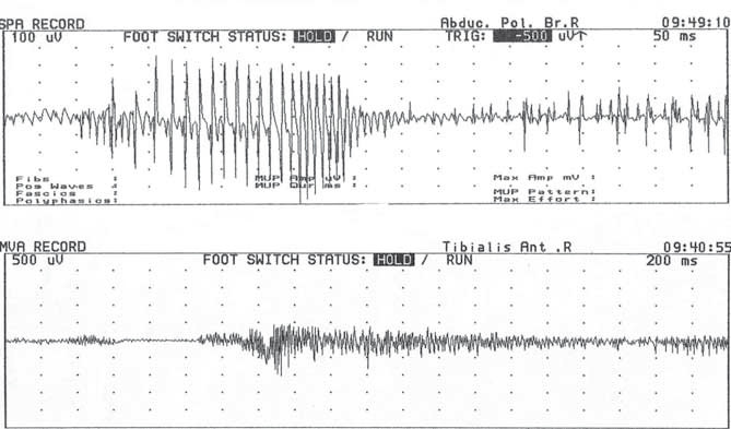 Myotonický výboj. Fig. 3. Myotonic discharge.