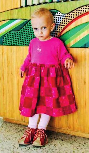 Osmileté školní dítě matky s familliární hypercholesterolémií léčené v graviditě statiny