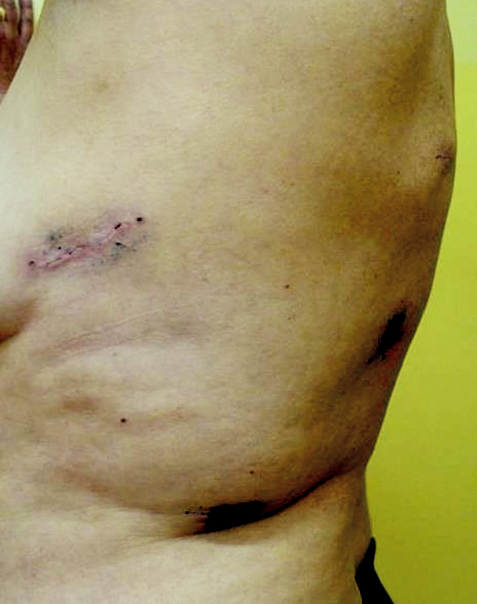Jizvy po torakoskopické horní lobektomii vlevo –14 dnů po operaci Fig. 1. Scars resulting from upper thoracoscopic lobectomy on the left- 14th postoperative day
