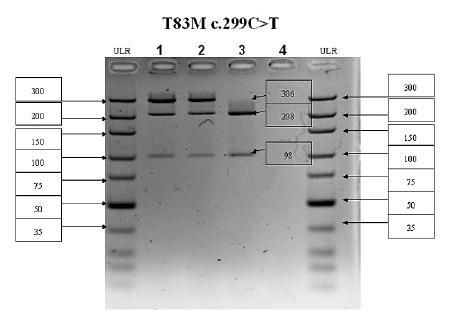 PCR-RFLP analýza 5. exónu ALPL génu  V prípade mutácie c.299C>T(T83M) zaniká štiepne miesto Hpy-CH4IV. PCR produkt má veľkosť 306 bp, v prípade štandardnej wildtype (WT) alely vznikajú fragmenty 208 a 98 bp, v prípade mutovanej alely (MUT) fragment ostáva neštiepený 306 bp. Dráha č. 1 – pacientka 1 (WT/MUT), dráha č. 2 – pacientka 2 (WT/MUT), dráha č. 3 – kontrolná vzorka (WT/WT), dráha č. 4 – negatívna kontrola; ULR – marker molekulovej hmotnosti