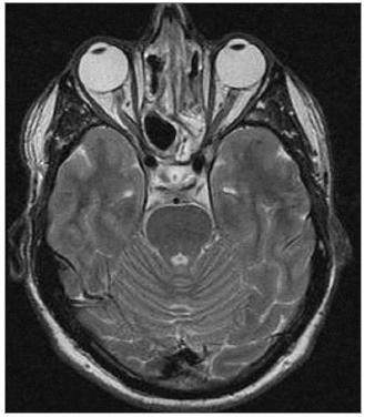 Pooperační MRI – paranazální dutiny volné, bez známek zastření, odeznívající zánětlivé změny v průběhu optického nervu.