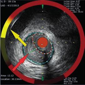 Aterosklerotický plát s přítomností tukového jádra – LCP