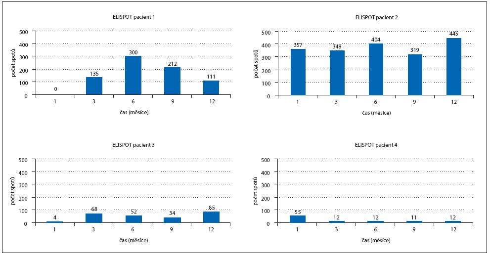 """Obr. 1. Měření specifické imunitní odpovědi metodou ELISpot. Metodou ELISpot byl měřen """"počet spotů"""", tedy počet TLs aktivovaných DCs naložených autologním Id-proteinem u 4 pacientů. Aktivace TLs je měřena na začátku vakcinace, 3. a 6. měsíc od začátku vakcinace, dále 3. a 6. měsíc po ukončení vakcinace. Imunitní odpověď byla zaznamenána u pacientů č. 1, 2 a 3, kde počet spotů v průběhu vakcinace přesáhl počet spotů na začátku vakcinace."""