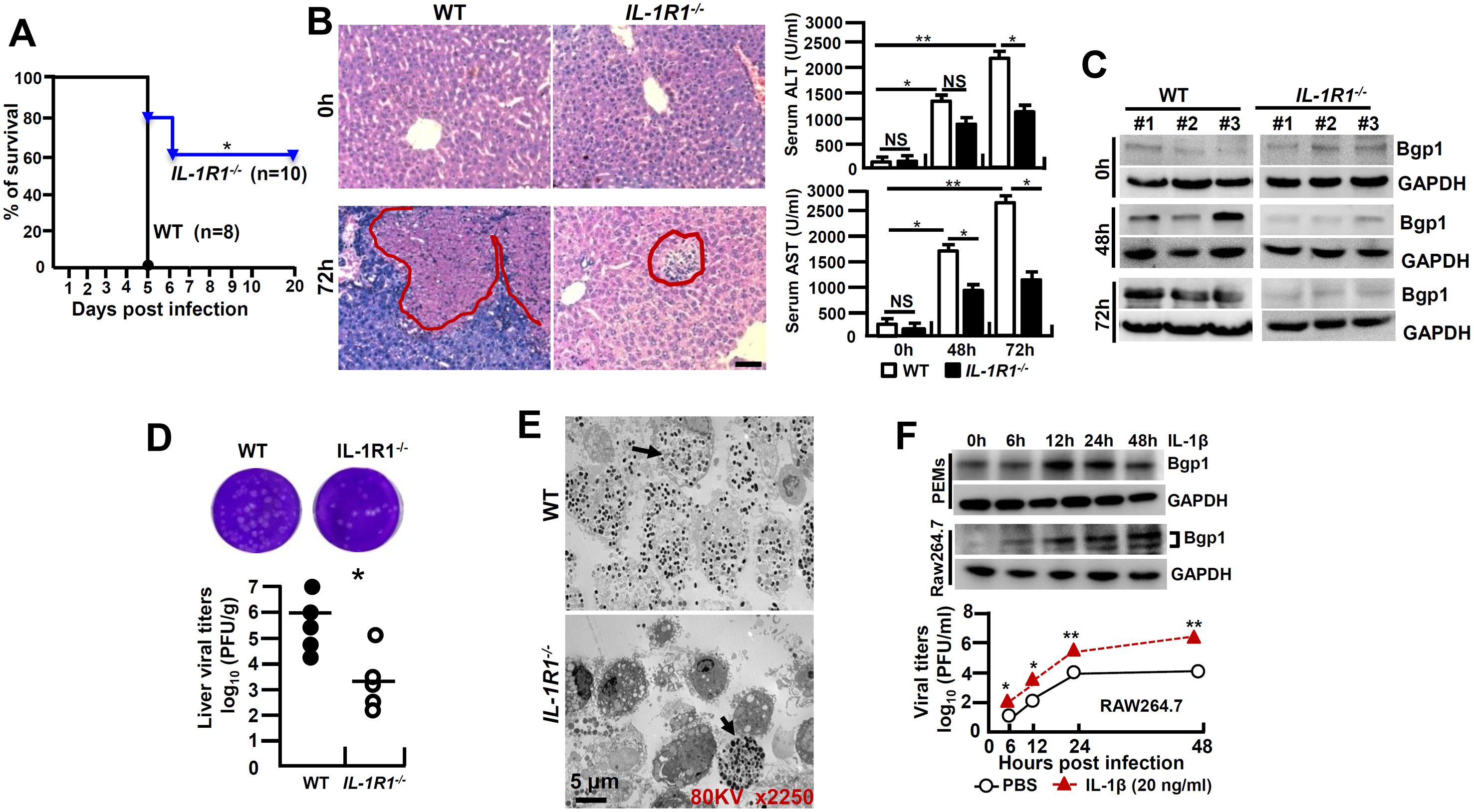 <i>IL-1R1</i> deficiency attenuates MHV-3-induced hepatitis.