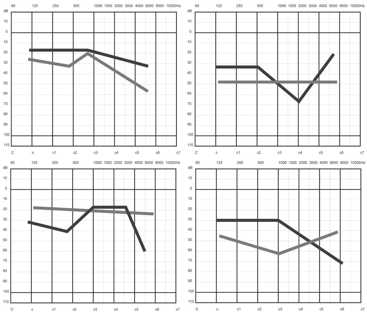 Schematické vyobrazení fluktuující senzorineurální vady sluchu u jediného pacienta v průběhu 10 dnů (audiometrie prováděna minimálně 1x denně).