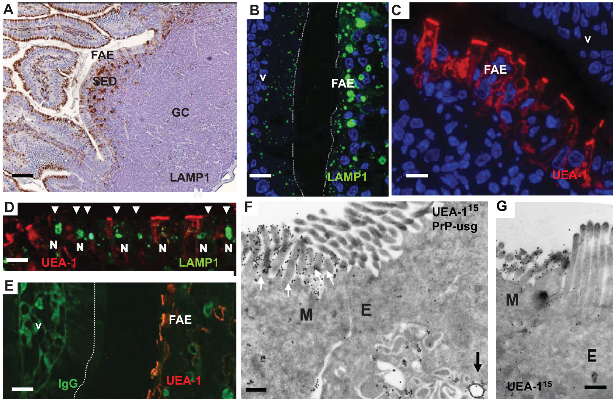 Follicle-associated epithelium (FAE) harbours enterocytes that have large apical late endosomal compartments and M cells.