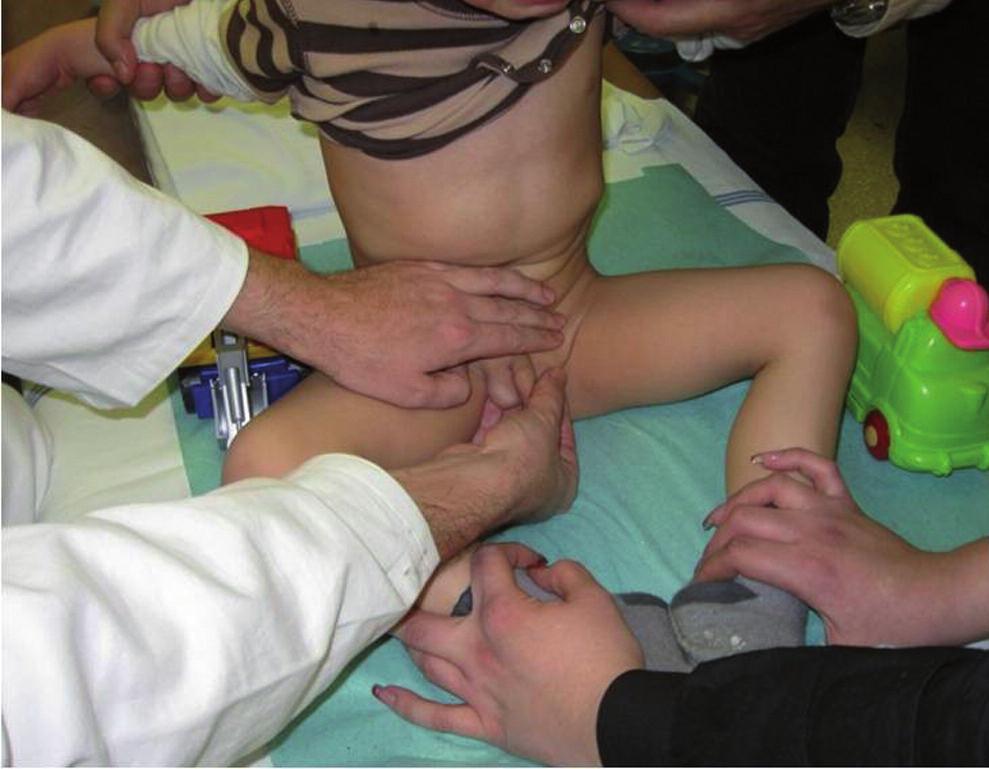 Bimanuální vyšetření pacienta s kryptorchismem. Fig. 1. Bimanual examination of the patient with cryptorchism.