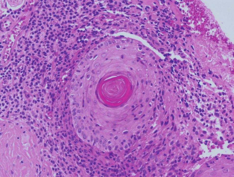 Buněčný infiltrát v okolí folikulů, HE x200