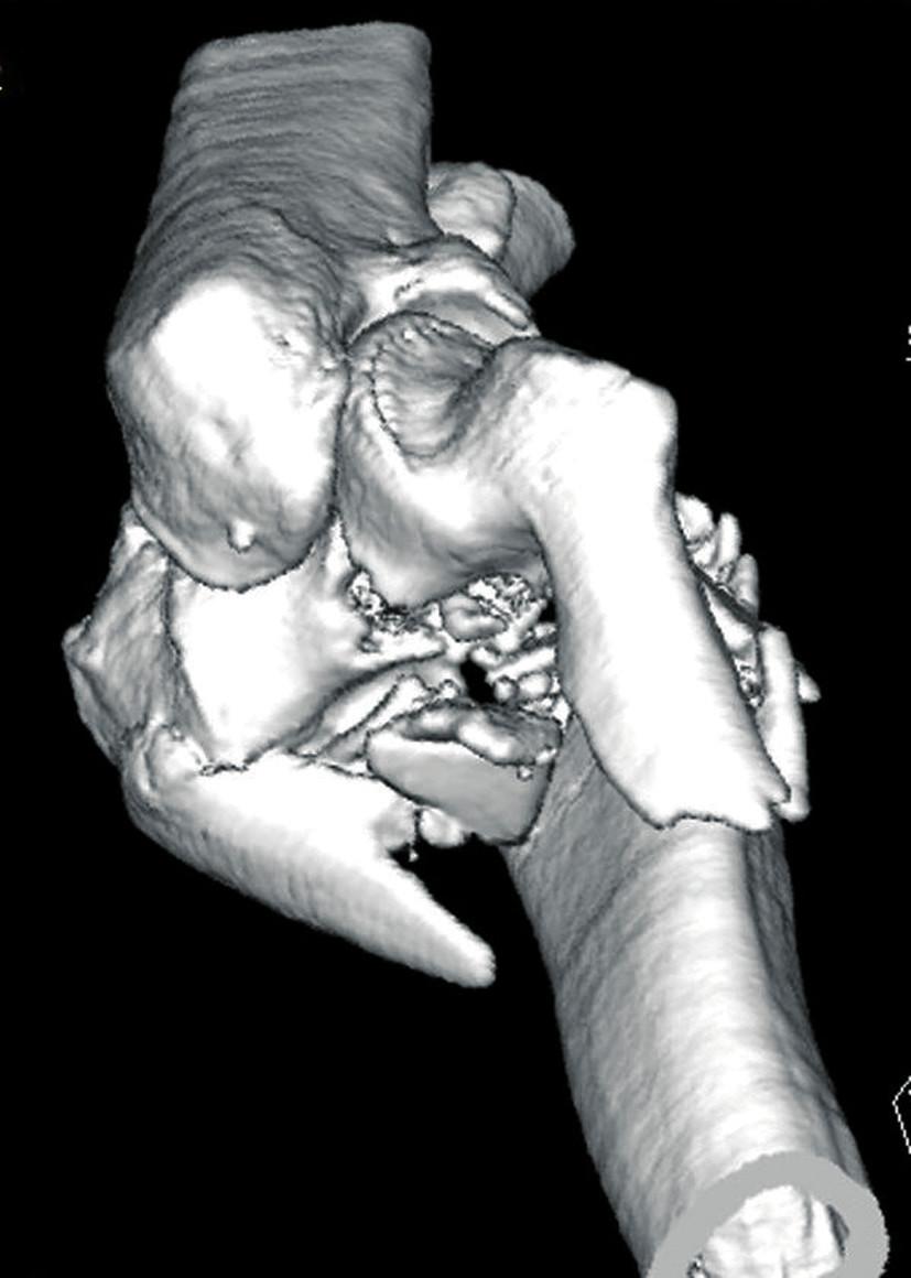 CT vyšetření - 3D rekonstrukce zlomeniny distálního humeru v předozadní projekci