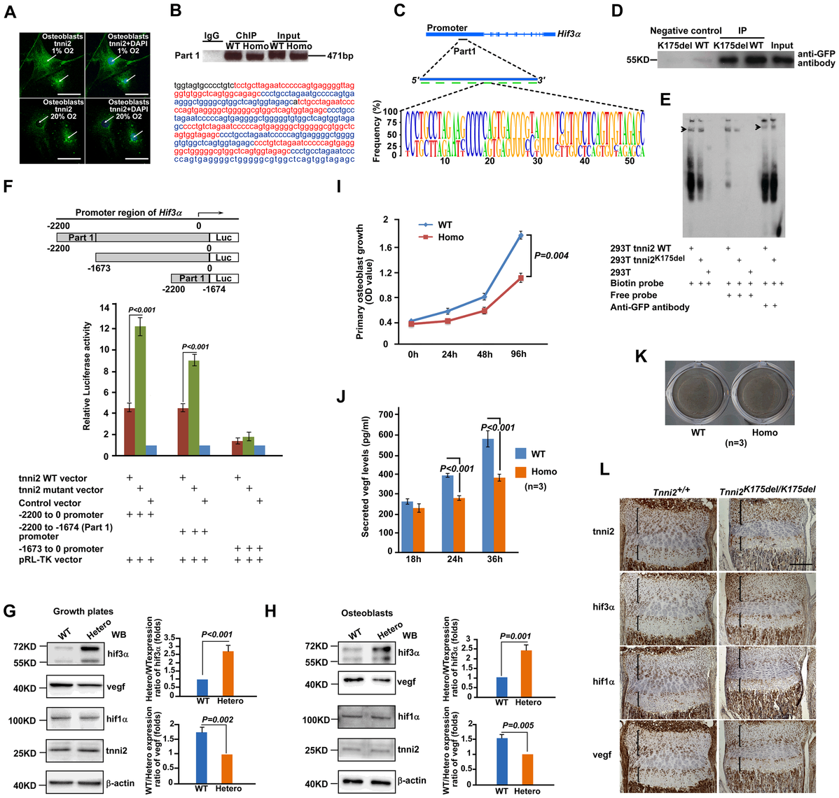 Mutant tnni2 protein increased hif3a and reduced vegf expression.