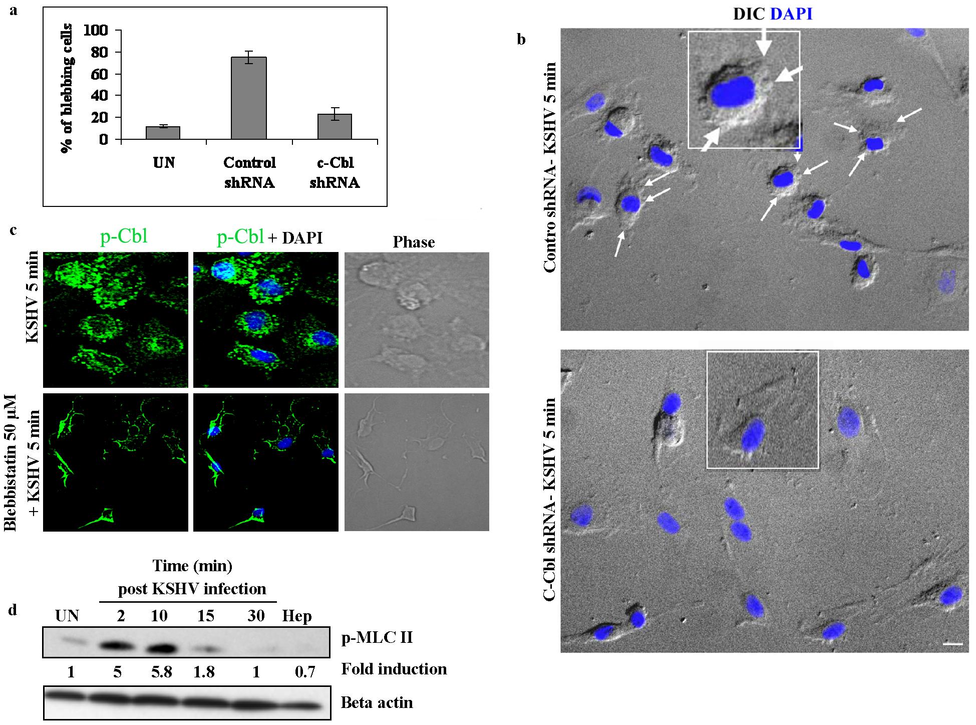 c-Cbl is upstream of myosin IIA in the induction of blebs.