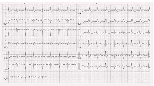 Nativní EKG u stejného pacienta jako na obr. 7.