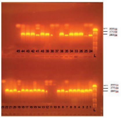 Príklad gélovej elektroforézy amplifikovaného PCR produktu – špecifického úseku nuc génu S. aureus