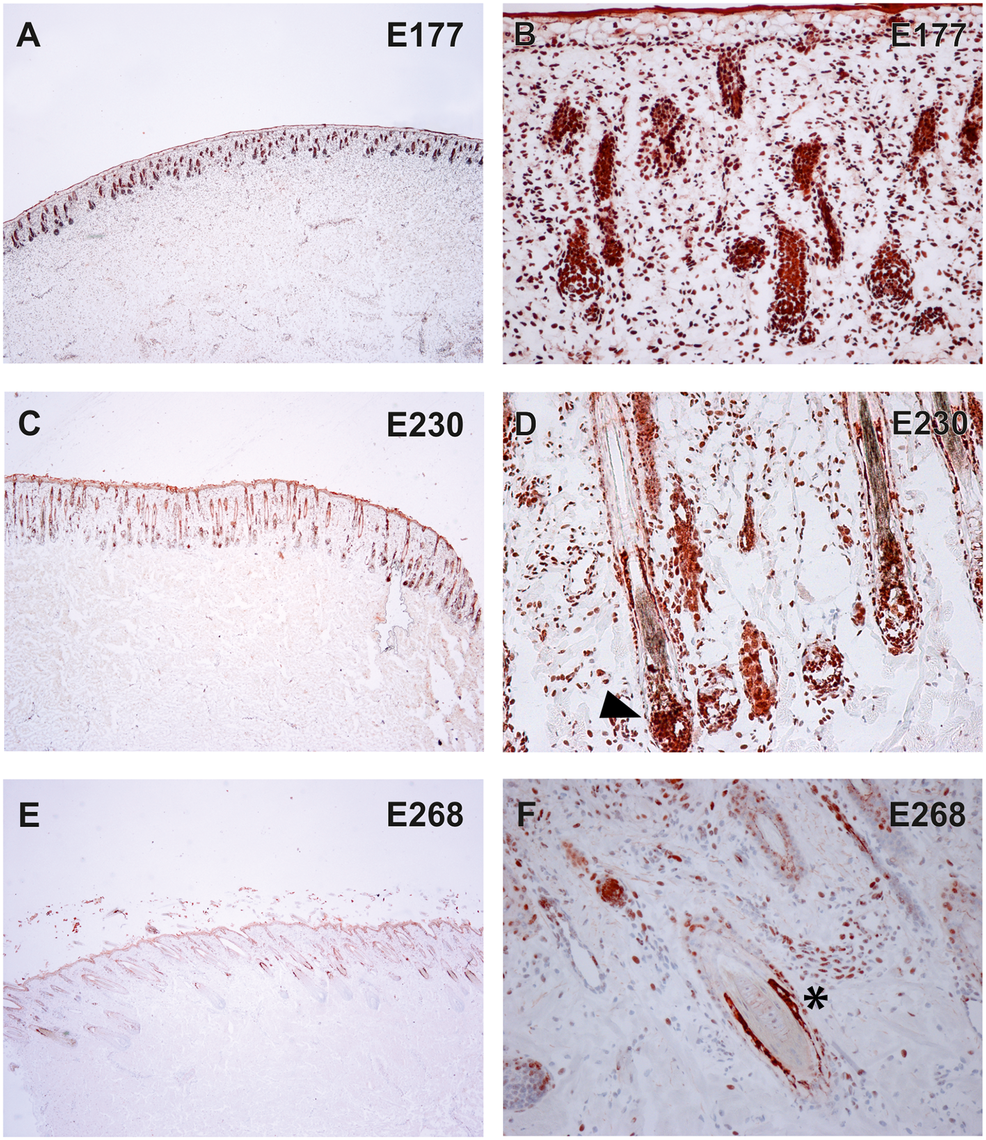 Expression of TSR2 protein in fetal bovine skin.